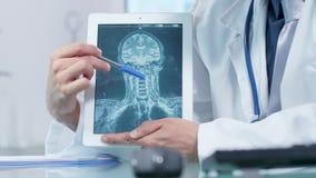 Φορητός πυροβολισμός των χεριών γιατρών που δείχνουν μια των ακτίνων X ανίχνευση εγκεφάλου απόθεμα βίντεο