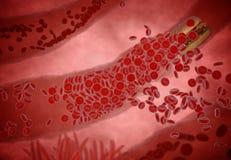Φραγμένη αρτηρία με τα αιμοπετάλια και την πινακίδα χοληστερόλης, έννοια για το κίνδυνο για την υγεία για την παχυσαρκία ή να κάν Στοκ Εικόνα