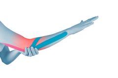 Φυσιοθεραπεία για τον πόνο, τους πόνους και την ένταση αγκώνων Στοκ Εικόνα