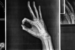 Χέρια ακτίνας X με το ΕΝΤΑΞΕΙ σημάδι στοκ φωτογραφία με δικαίωμα ελεύθερης χρήσης