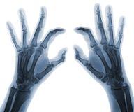 Χέρια ακτίνας X Στοκ Εικόνες