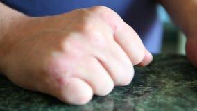 Χέρια με την ψωρίαση ή την ασθένεια βοτσάλων, προβλήματα δερμάτων απόθεμα βίντεο