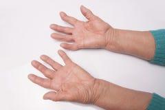 Χέρια με τη Rheumatoid αρθρίτιδα Στοκ φωτογραφία με δικαίωμα ελεύθερης χρήσης