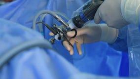 Χέρια χειρούργων που εκτελούν τη laparoscopic χειρουργική επέμβαση, απόθεμα βίντεο