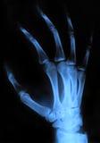 Χέρι ακτίνας X Στοκ Εικόνα