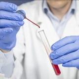 Χέρι ενός επιστημονικού παίρνοντας ένα χέρι σωλήνων δειγμάτων αίματος που κρατά μια δοκιμή σωλήνων στοκ φωτογραφία