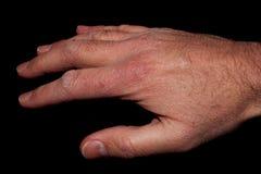 Χέρι με το ξηρό δέρμα Στοκ φωτογραφίες με δικαίωμα ελεύθερης χρήσης