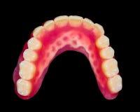 Χαμηλότερη οδοντοστοιχία Στοκ Εικόνα