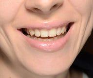 Χαμόγελο γυναικών Στοκ Φωτογραφίες