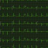 Χαρακτηριστική ανθρώπινη πράσινη γραφική παράσταση ηλεκτροκαρδιογραφημάτων στο σκοτεινό υπόβαθρο, άνευ ραφής σχέδιο Στοκ Φωτογραφίες