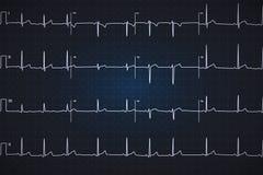 Χαρακτηριστικό ανθρώπινο ηλεκτροκαρδιογράφημα, άσπρη γραφική παράσταση στο σκούρο μπλε υπόβαθρο Στοκ εικόνες με δικαίωμα ελεύθερης χρήσης