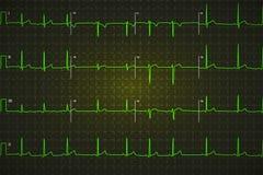 Χαρακτηριστικό ανθρώπινο ηλεκτροκαρδιογράφημα, βεραμάν γραφική παράσταση στο σκοτεινό υπόβαθρο Στοκ εικόνα με δικαίωμα ελεύθερης χρήσης