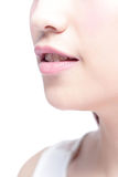 Χείλια γυναικών και κίτρινο δόντι Στοκ Εικόνες