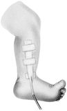 Χειρουργικός αγωγός - χαμηλότερα πόδι και πόδι παιδιών ` s Στοκ Φωτογραφίες