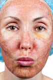 Χημική αποφλοίωση. Δέρμα περγαμηνής πριν από την απόρριψη. Κλείστε επάνω Στοκ Φωτογραφίες