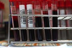 Χορηγός αίματος στη δωρεά Στοκ Εικόνες