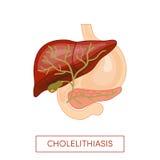 Χολιλιθίαση - ασθένεια χολόλιθων διανυσματική απεικόνιση
