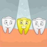 Χρυσό δόντι Στοκ Εικόνες