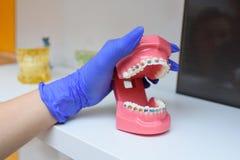 Χρωματισμένα στηρίγματα στα δόντια στοκ φωτογραφία με δικαίωμα ελεύθερης χρήσης