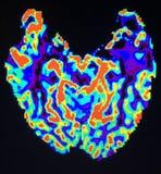 Χρώματα mri πονοκέφαλου μηνιγγιώματος εγκεφάλου στοκ φωτογραφίες με δικαίωμα ελεύθερης χρήσης