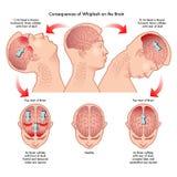 Χτύπημα στο λαιμό και ο εγκέφαλος διανυσματική απεικόνιση