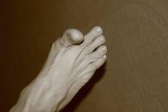 Χλωμό πόδι που εκρήγνυται με τα δάχτυλα Στοκ φωτογραφία με δικαίωμα ελεύθερης χρήσης