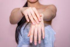 Όμορφα χέρια γυναικών που εφαρμόζουν την κρέμα Στοκ Εικόνες