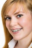 Όμορφη νέα γυναίκα με τα υποστηρίγματα στα δόντια στοκ εικόνες