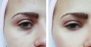 Όμορφος ασθενής ακμής νέων κοριτσιών, μώλωπες κάτω από τη θεραπεία αφαίρεσης ματιών πριν και μετά από τις διαδικασίες στοκ εικόνες