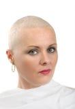 Όμορφος ασθενής με καρκίνο γυναικών Μεσαίωνα χωρίς τρίχα στοκ εικόνες με δικαίωμα ελεύθερης χρήσης
