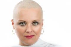 Όμορφος ασθενής με καρκίνο γυναικών Μεσαίωνα χωρίς τρίχα στοκ φωτογραφία