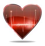 Όργανο ελέγχου καρδιών Στοκ φωτογραφίες με δικαίωμα ελεύθερης χρήσης