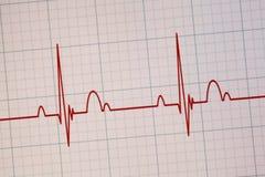 Όργανο ελέγχου ECG/EKG Στοκ εικόνες με δικαίωμα ελεύθερης χρήσης