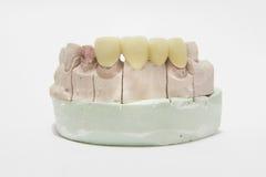 Όλες η κεραμικές ιδιαίτερα αισθητικές οδοντικές γέφυρα και η κορώνα στο πρότυπο Στοκ φωτογραφία με δικαίωμα ελεύθερης χρήσης