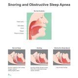 Ύπνος Snoring ελεύθερη απεικόνιση δικαιώματος