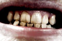 агрессивныйые зубы стоковое изображение