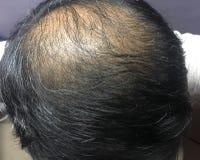 Азиатские головные показывая падение и выпадение волос волос стоковое изображение rf