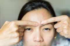 Азиатские женщины имеют кожу угорь проблемы стоковое фото rf