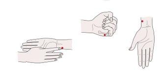 Активные пункты иглоукалывания на руках r бесплатная иллюстрация
