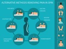 Альтернативные mhethods извлекая боль в позвоночнике иллюстрация вектора