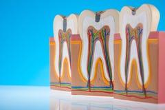 Анатомия зуба, яркая красочная концепция тона стоковые фотографии rf