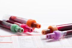 Анализ крови, пробы крови на форме лаборатории Стоковая Фотография RF