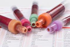 Анализ крови, пробы крови на форме лаборатории Стоковое Изображение
