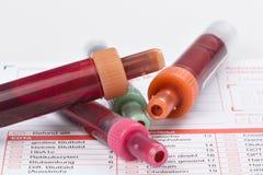 Анализ крови, пробы крови на форме лаборатории Стоковое фото RF
