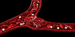 Анемия серповидного эритроцита, иллюстрация показывая кровеносный сосуд с нормальным и деформированным полумесяцем Стоковое фото RF