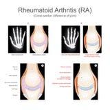 артрит ревматоидный Стоковые Изображения RF