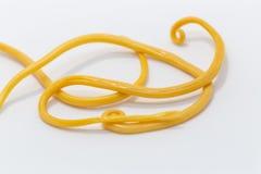 Аскаридоз заболевание причиненное паразитными lumbricoides Ascaris roundworm для образования стоковые изображения