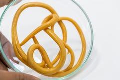 Аскаридоз заболевание причиненное паразитными lumbricoides Ascaris roundworm для образования стоковое фото rf