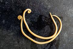Аскаридоз заболевание причиненное паразитными lumbricoides Ascaris roundworm для образования стоковое изображение rf