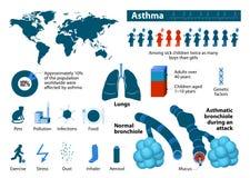 Астма infographic Стоковое Изображение RF